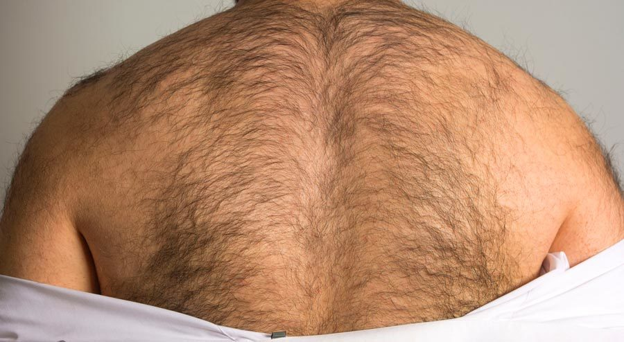 vitamins to reduce body hair