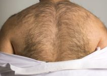 how to get rid of back hair permanently at home